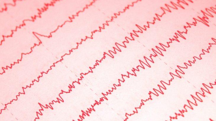集中を決定する脳波の種類 α波 β波 γ波 θ波 δ波とは?